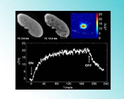 MRI temperature mapping in real time