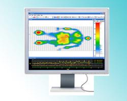 Non-invasive temperature mapping